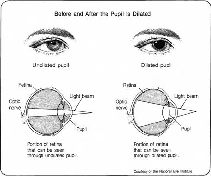 dilated eye exam diagram