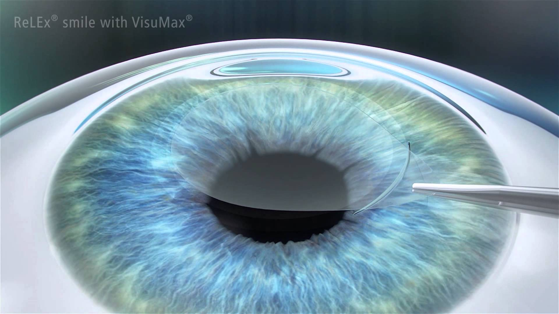 Everything You Need To Know About Smile Eye Surgery