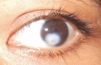 vl-corneal-ulcer