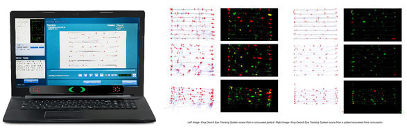 EyeTech Digital Systems - Blog - Eye Tracking Technology for Concussion Monitoring - KDT King Devick Test