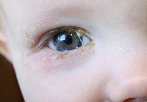 Blocked Tear Duct Toddler Natural Remedy
