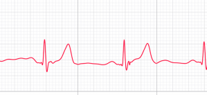 How to Share an ECG from Your Apple Watch with Your Doctor