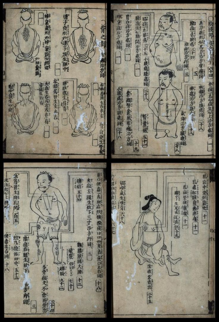 ◈ Китайское иглоукалывание ◈ предотвращает инфаркты, инсульты