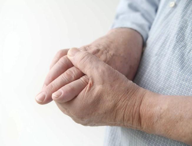 Лечение Суставов Артрит