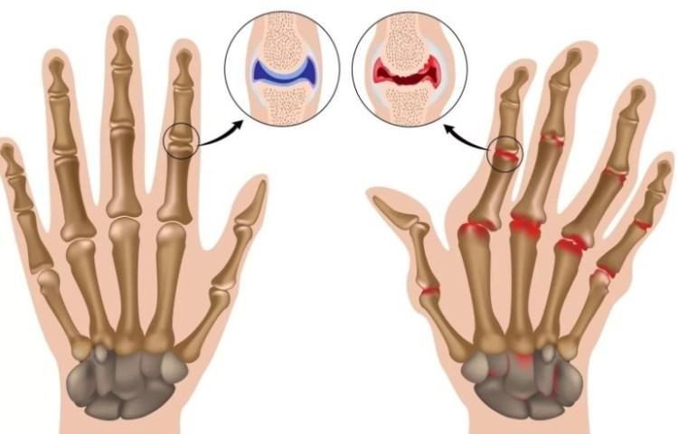Артри́т — собирательное обозначение болезней (поражений) суставов воспалительной этиологии.