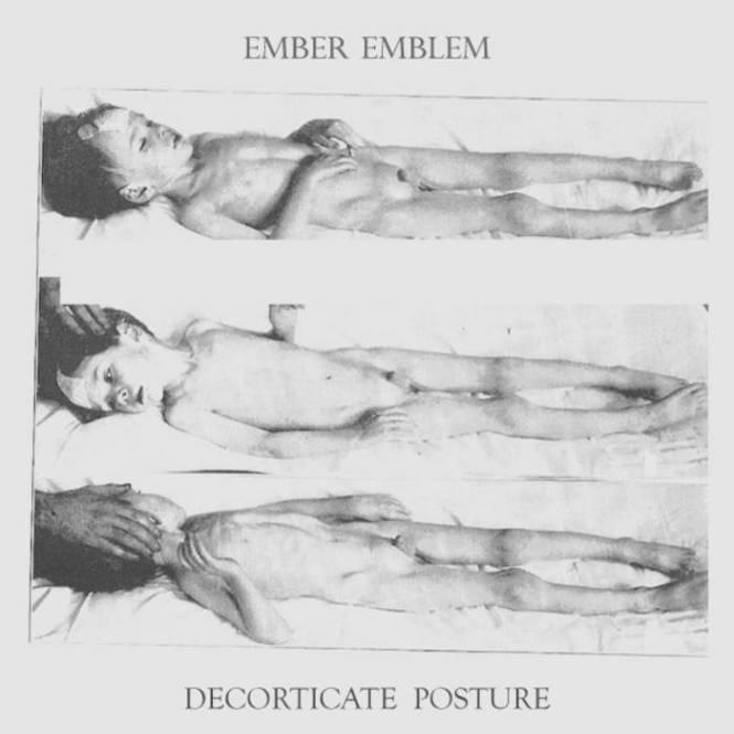 Decorticate Versus Decerebrate Posture Decorating Ideas