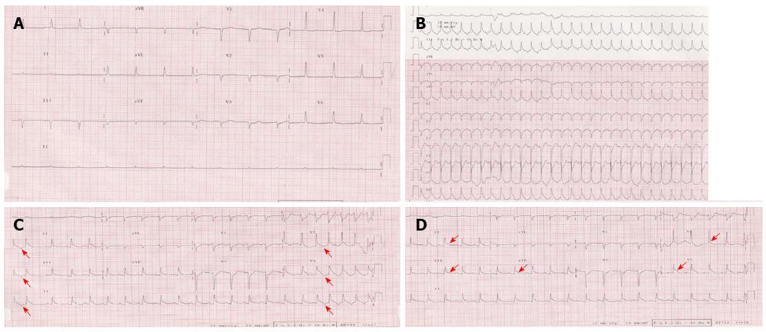 Tachycardia Abnormal Ecg Sinus