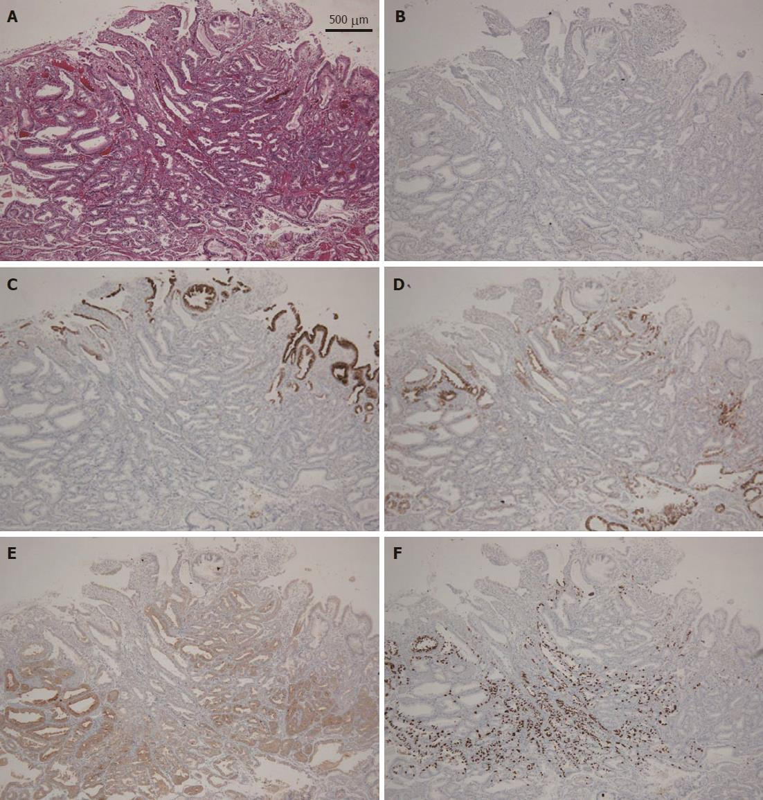 Gastric Adenocarcinoma Of Fundic Gland Type Spreading To