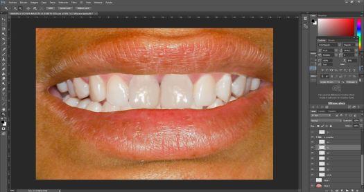 Diseño Digital de Sonrisa en Photoshop