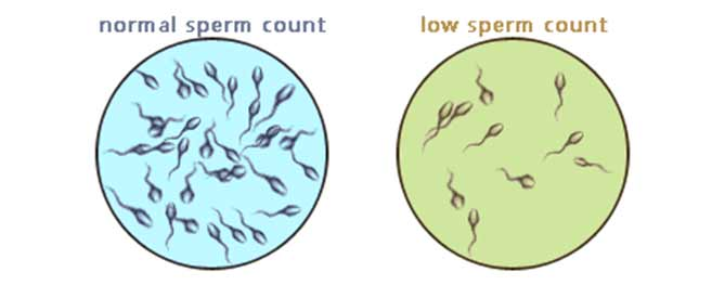 Risk seem Low sperm count reversal impudence!