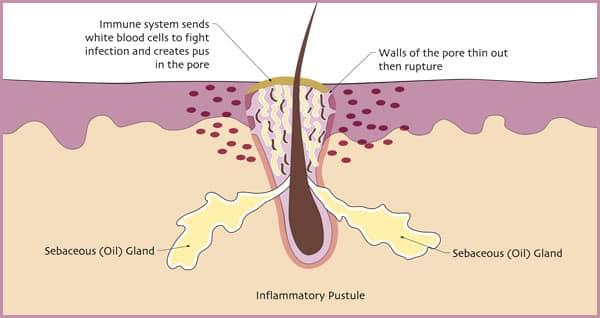 inflammatory-pustule