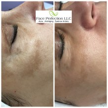 Work in progress. Ultimate Facial Rejuvenation Package for hyperpigmentation and texture improvement. Results vary per individual.