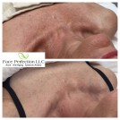 Ultimate Rejuvenation Package - work in progress. Results vary per individual.