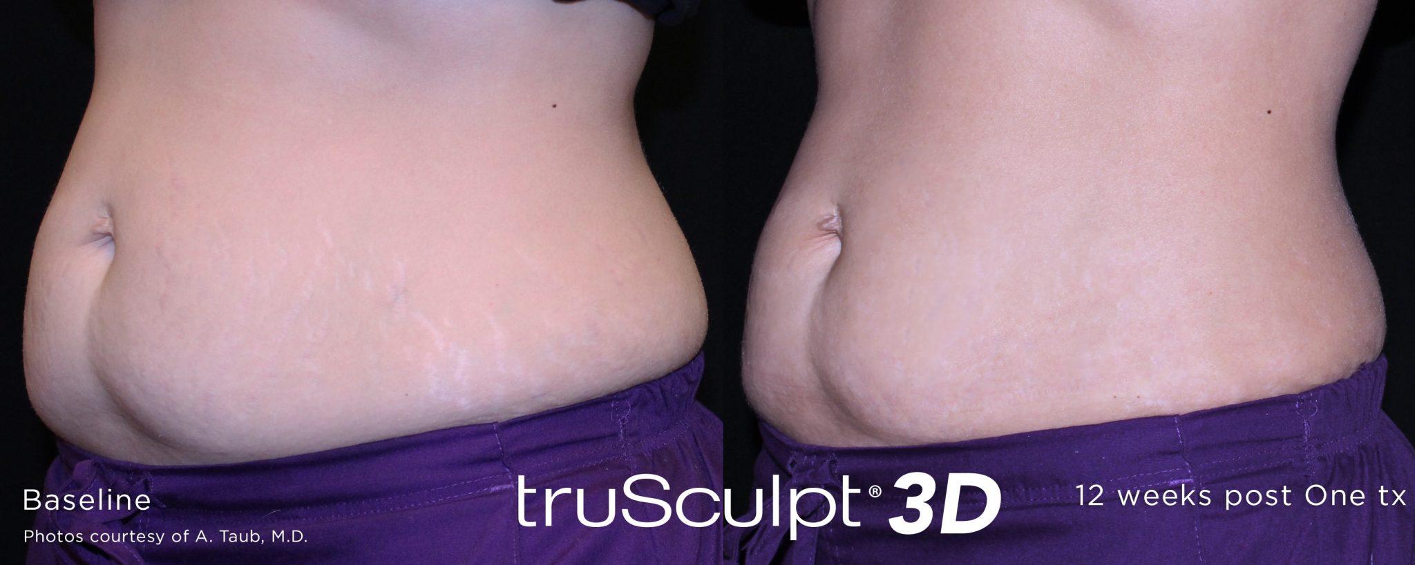 trusculpt_3d_11