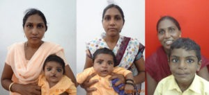 Baby with cleft lip surgery in nagercoil
