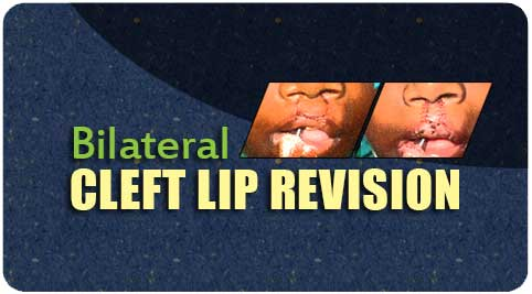Bilateral cleft lip revision Surgery in India