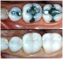 tooth coloured composite restoration