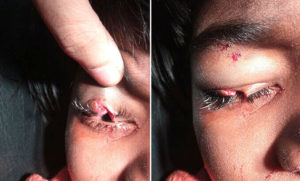 Eyelid surgery in Nagercoil