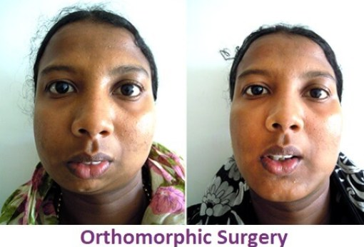 Facial Asymmetric Surgery in Nagercoil