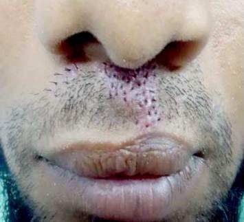 moustach-hair-transplant