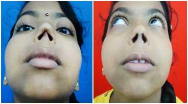 nose surgery in tamilnadu