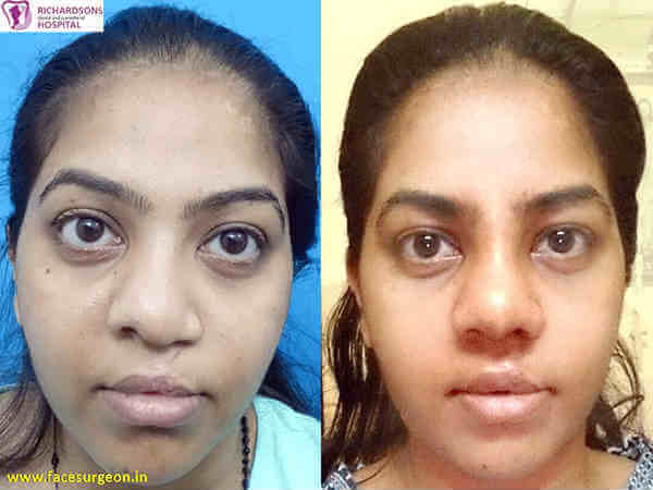 Nose Surgery in Tamil Nadu