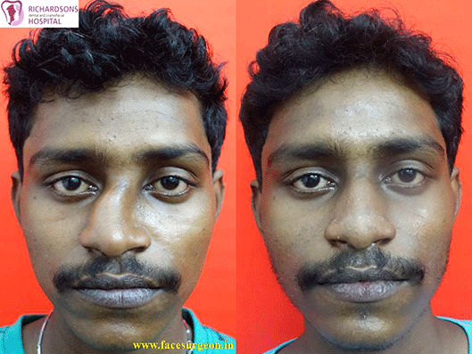 Nose plastic surgery in India