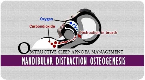 Obstructive sleep apnoea in Richardson dental and craniofacial Hospital