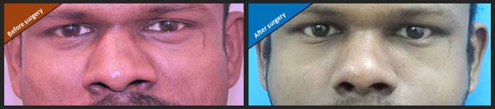 Rhinoplasty surgery in Nagercoil