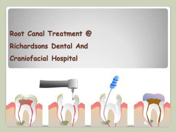 Root Canal Treatment at Richardsons Dental And Craniofacial in India