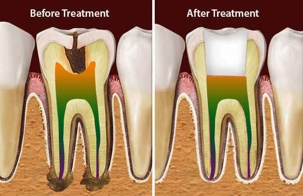 Root Canal Treatment in Nagercoil
