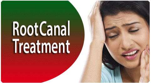 Root Canal Treatment in Tamil Nadu
