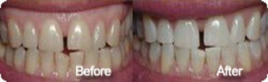Teeth Whitening and Cleaning Treatment in Nagercoil