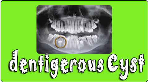 dentigerous cyst