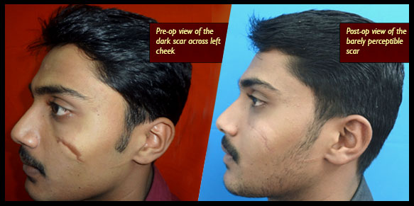 facial scar removing treatment in India