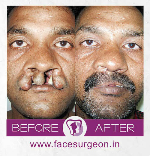 Bilateral cleft lip surgery in India