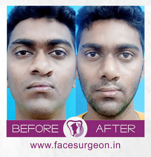 Facemakeover at RIchardsons Hospital India