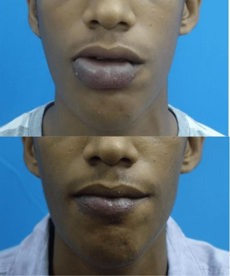 before after pathology surgery in india