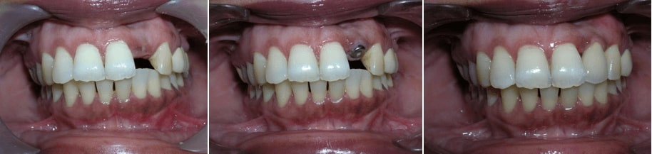 best dental implant treatment in india