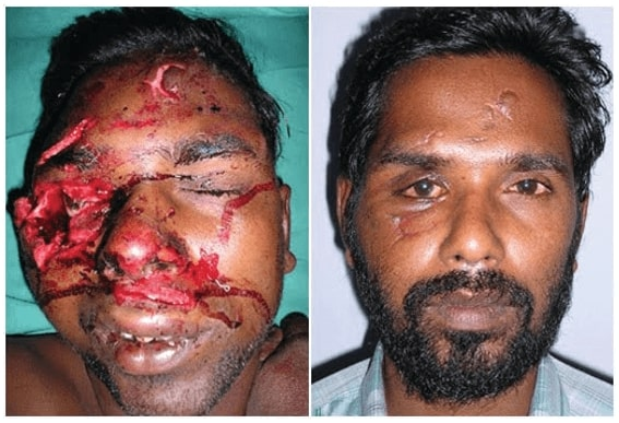 facial trauma surgery in india