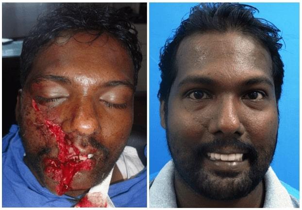 maxillofacial trauma surgery in india