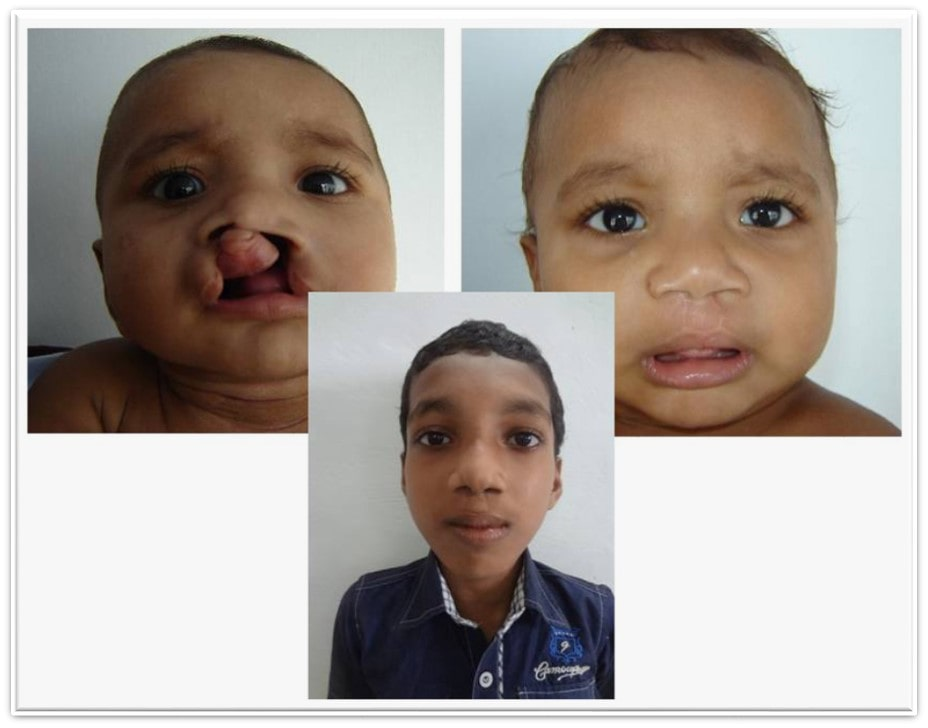 child Cleft lip surgery in india