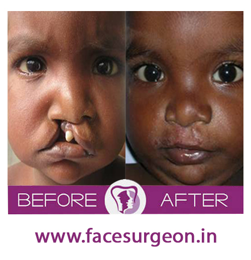 child cleft palate treatment in india