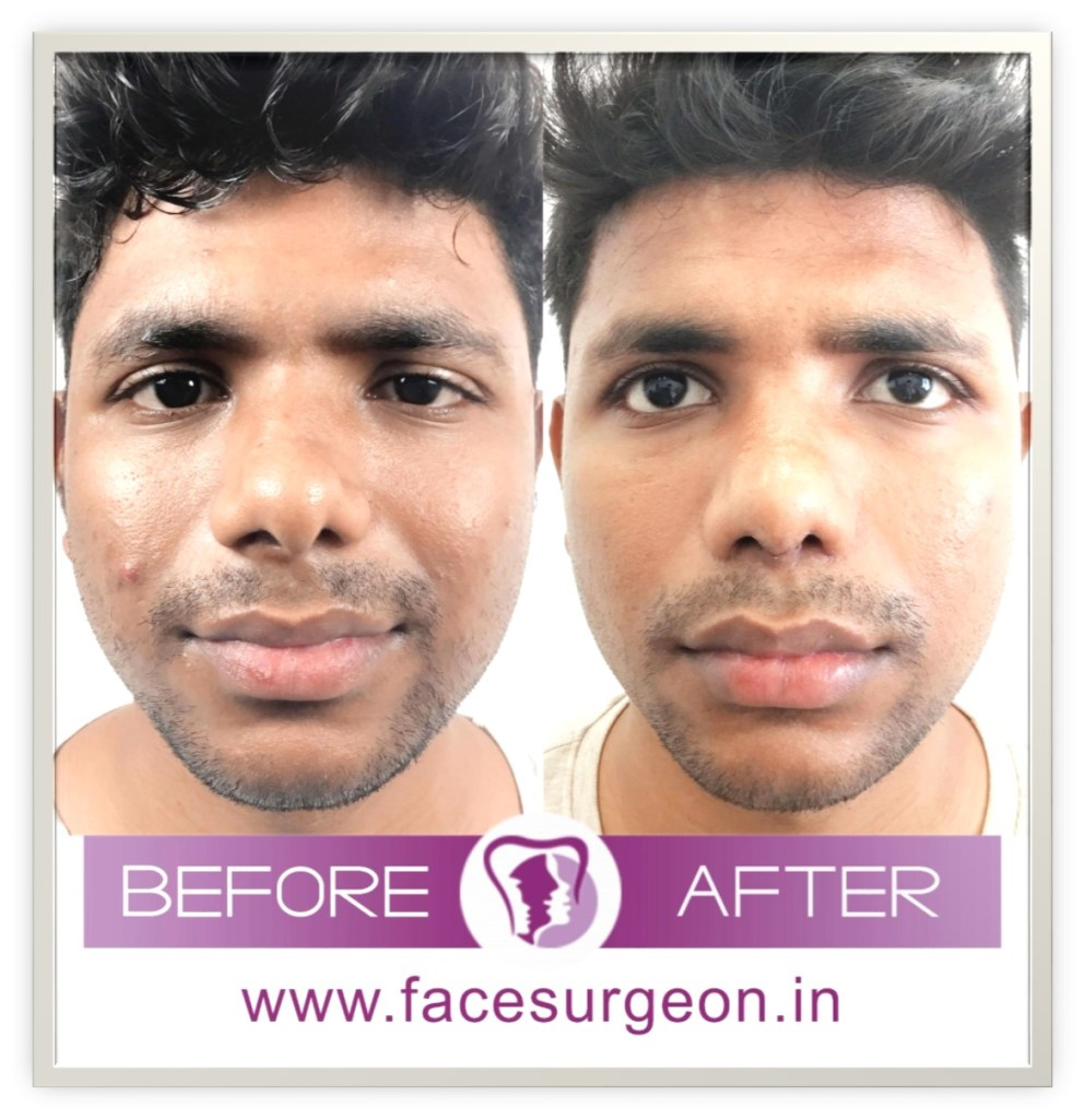 front view of rhinoplasty surgery