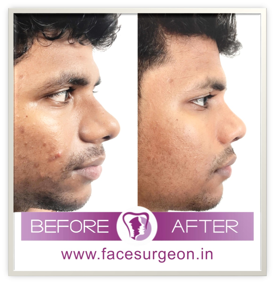 side view of rhinoplasty surgery