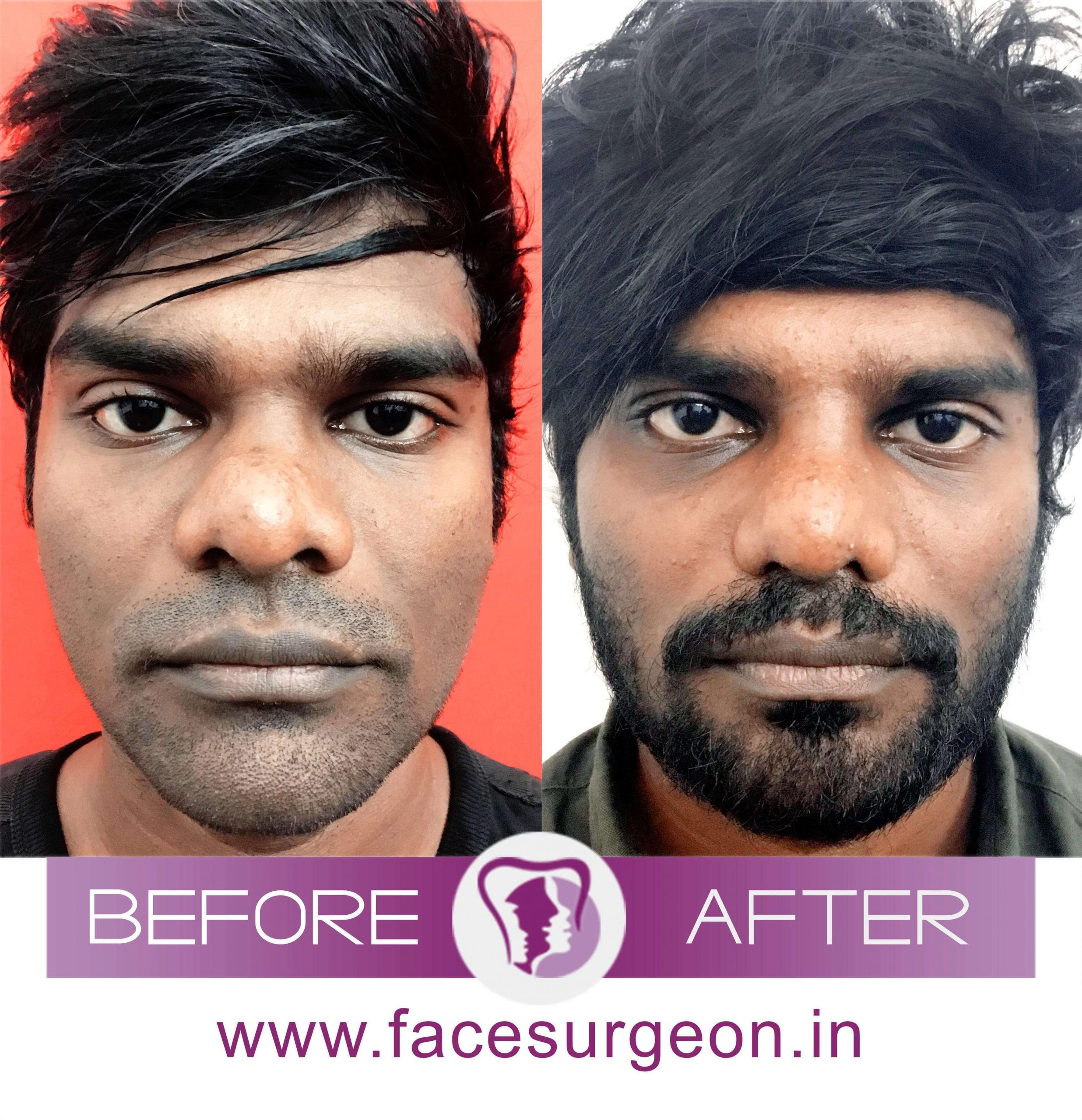 Nose Correction Surgery