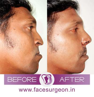 Nose Corrective Surgery Side View