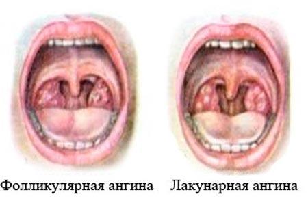 scăderea vederii cu angină