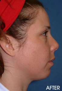 Liposuction Chin Before After Sacramento