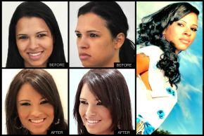 FFS Patient:  Ariadna Arantes, model, open about her facial feminization
